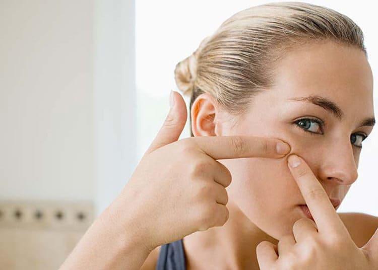 Najlepšie akné krémy. Účinné lieky a tabletky na akné? Účinné prípravky na pupienky – poradie výrobkov